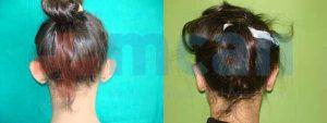 Antes y después de la otoplastia