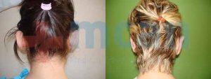 Antes y después de la corrección de orejas de soplillo