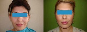 Antes y después el lifting facial