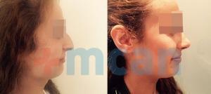 Antes y después de la rinoplastia en Turquía