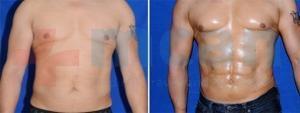 Antes y después de la liposucción vaser