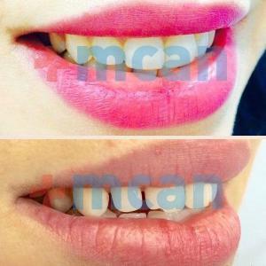 Dental – mcan health