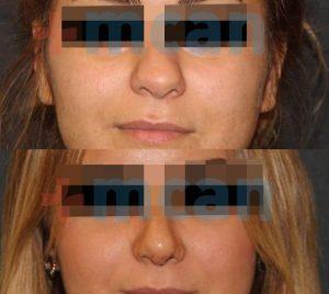 Nasenchirurgie