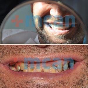 Implantes dentales y coronas dentales