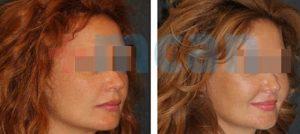 Antes y después del aumento de pómulos con inyección de grasa