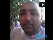 Hair Transplant Turkey Review | Amin | MCAN Health