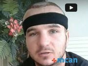 Hair Transplant Turkey Review | Sotiraq from Sweden | MCAN Health