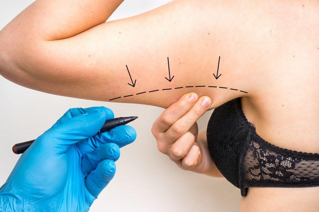 Arm Lift In Turkey   MCAN Health