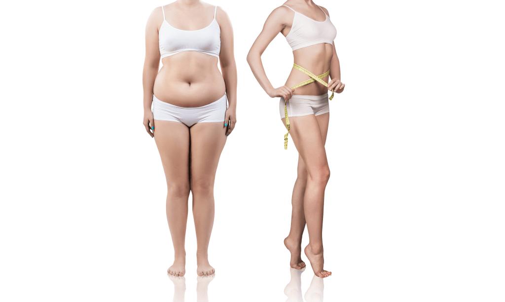 Mega-Liposuction in Turkey