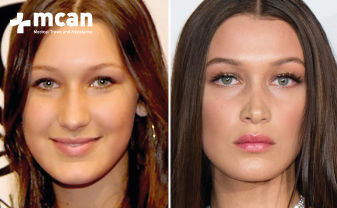 The Celebrities Who Have Had Nose Job Mcan Health