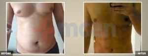 High Def Liposuction Before – After