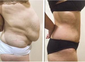 Antes y después de la liposucción y abdominoplastia