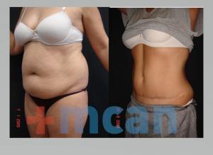 Antes y después de la liposucción y abdominoplastia en Turquía