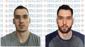 beard transplant before after | MCAN Health