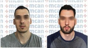 Antes y después del trasplante de barba