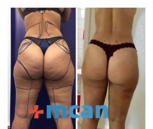 Antes y después de liposucción | MCAN Health