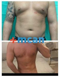 Liposuction before after | MCAN Health