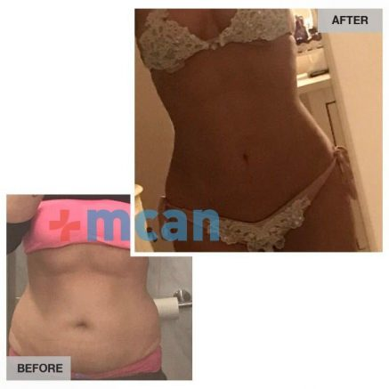 Tummy Tuck before – After | MCAN HEALTH