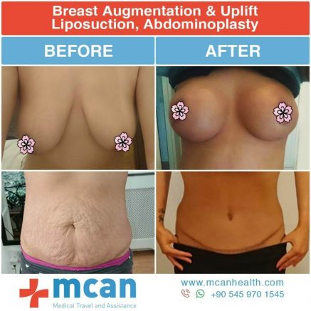 Breast Augmentation and Tummy Tuck before – After | MCAN HEALTH