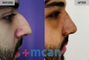 Before-After Rhinoplasty