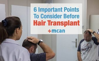 6-things-to-consider-before-hair-transplant-min