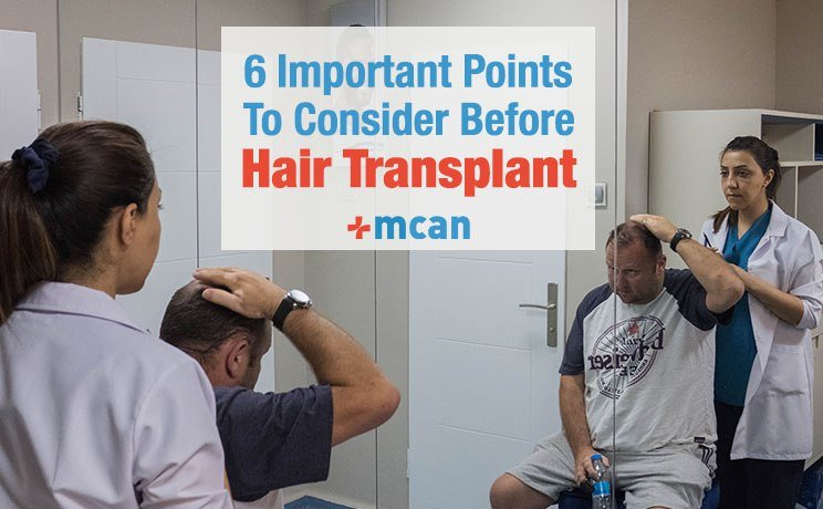 6 Things to consider before hair transplant MCAN Health