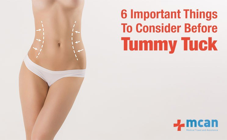 Consider Before Tummy Tuck - MCAN Health