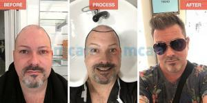 Hair Transplant Turkey - Before After - MCAN Health