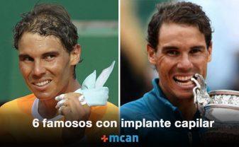 famosos con implante capilar