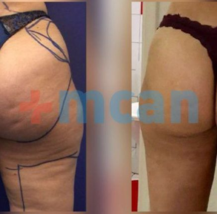 BBL Turkey Before After - MCAN Health