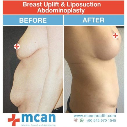 Breast Augmentation and Tummy Tuck Turkey Before After - MCAN Health 01