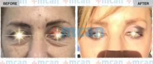 Eyelid Surgery Turkey Before After - MCAN Health 01