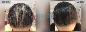 Female Hair Transplantation Before After - MCAN Health 01