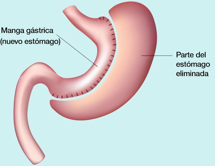 manga gástrica - cirugía estómago