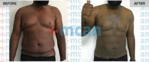 Gynecomasty Turkey Before After - MCAN Health 02