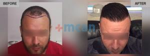 Hair Transplant Turkey Before After - MCAN Health 02