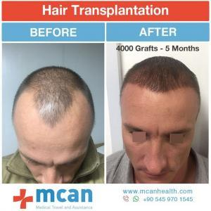 Hair Transplant Turkey Before After - MCAN Health 04
