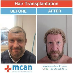 Hair Transplant Turkey Before After - MCAN Health 07
