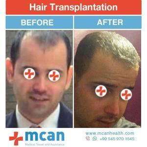 Hair Transplant Turkey Before After - MCAN Health 08