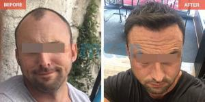 Hair Transplant Turkey Before After - MCAN Health 09