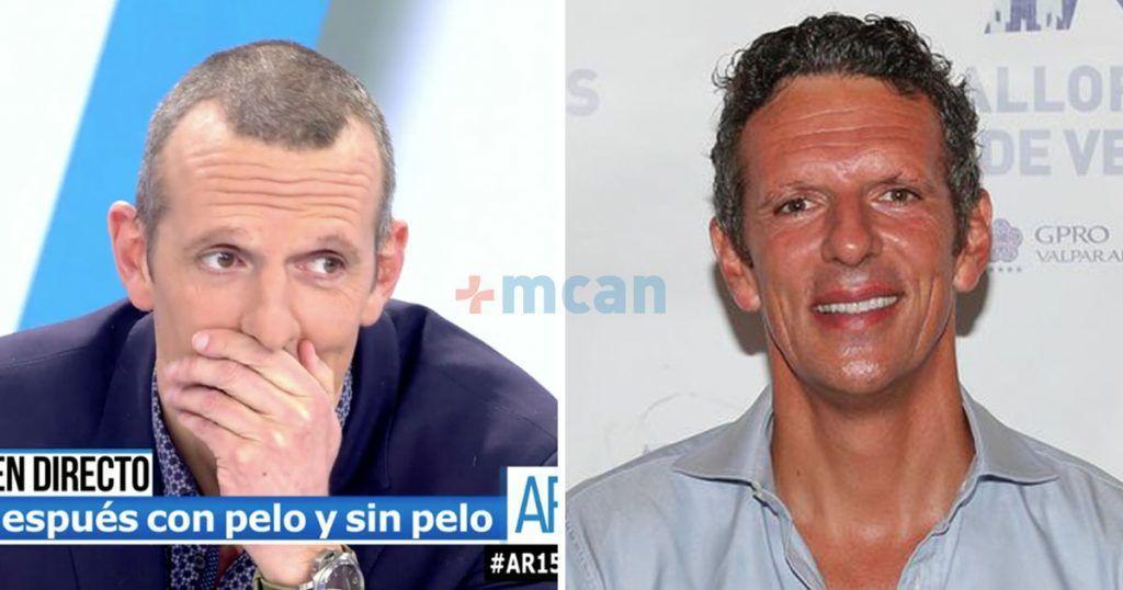 famosos antes y después trasplante capilar