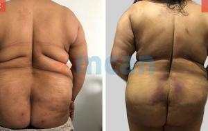 Liposuction Turkey Before After - MCAN Health 02