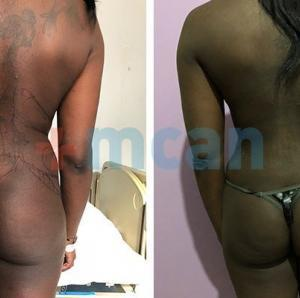 Liposuction Turkey Before After - MCAN Health 03