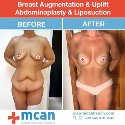 Momy Makeover Turkey Before After - MCAN Health 01