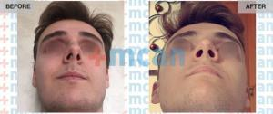 Rhinoplasty Turkey Before After - MCAN Health