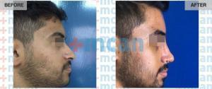 Rhinoplasty Turkey Before After - MCAN Health 02