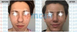 Rhinoplasty Turkey Before After - MCAN Health 04