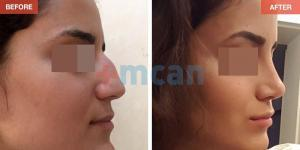 Rhinoplasty Turkey Before After - MCAN Health 07