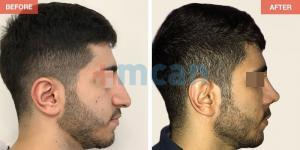 Rhinoplasty Turkey Before After - MCAN Health 09