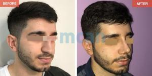 Rhinoplasty Turkey Before After - MCAN Health 10